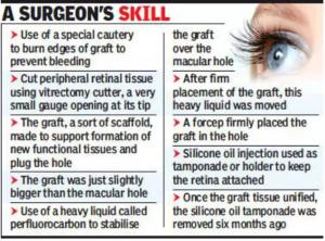 A Surgeons Skill